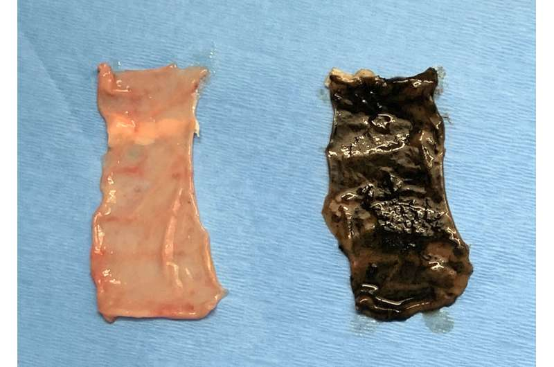 Synthetic coating for the GI tract could deliver drugs or aid in digestion