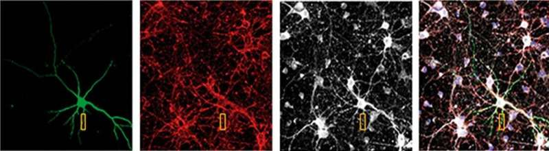 Researchers find a protein involved in Huntington's disease motor deficits