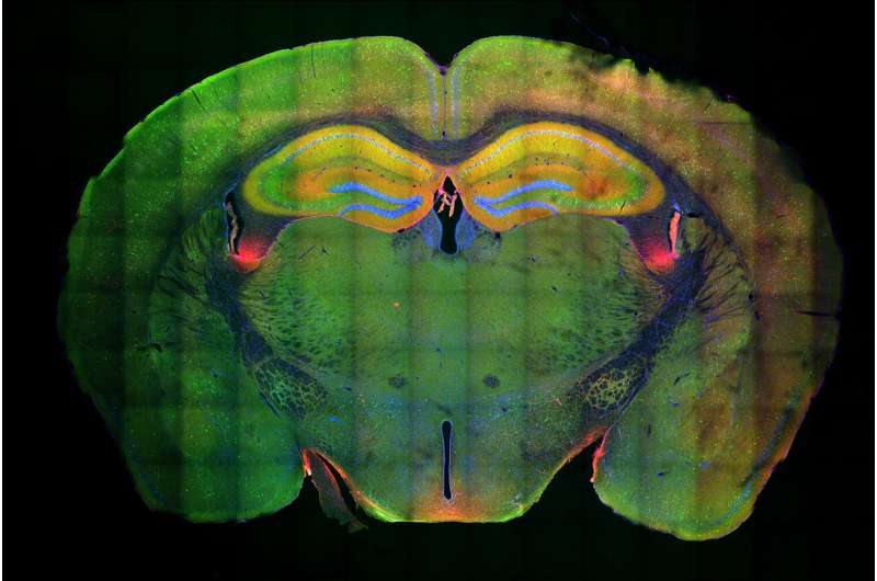 Neuroscientists discover a molecular mechanism that allows memories to form