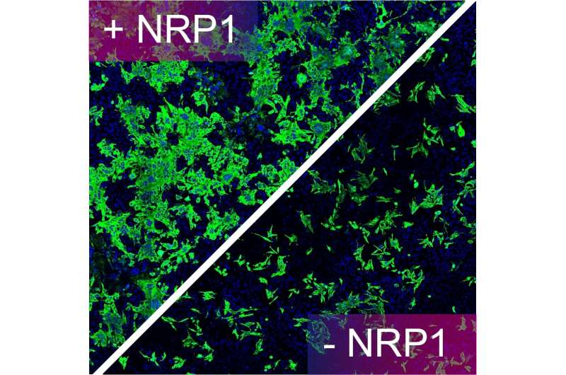 Neuropilin-1 drives SARS-CoV-2 infectivity, finds breakthrough study