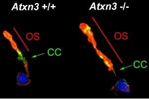 Study identifies new functions in the gene that causes Machado-Joseph disease