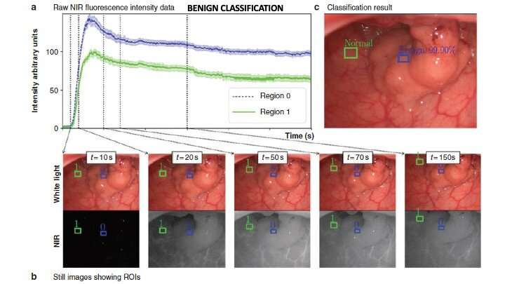Artificial Intelligence used to enhance decision making during colorectal cancer surgery for first time