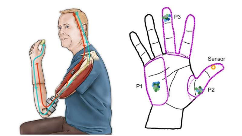 Even after long-term exposure, bionic touch does not remap the brain