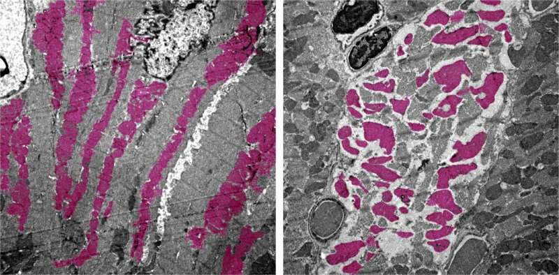 Scientists discover how COVID-19 virus causes multiple organ failure in mice
