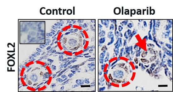Breast cancer drug, olaparib, depletes store of immature eggs in mouse ovaries