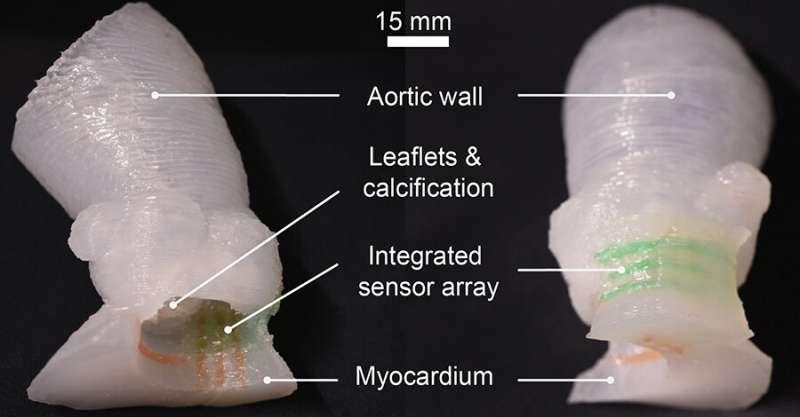 Research brief: Researchers 3D print lifelike heart valve models
