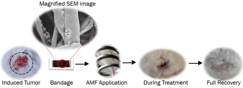 A bandage with magnetic nanofibres that kills skin cancer cells with heat