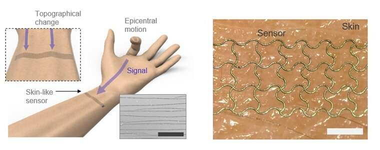 A deep-learned E-skin decodes complex human motion