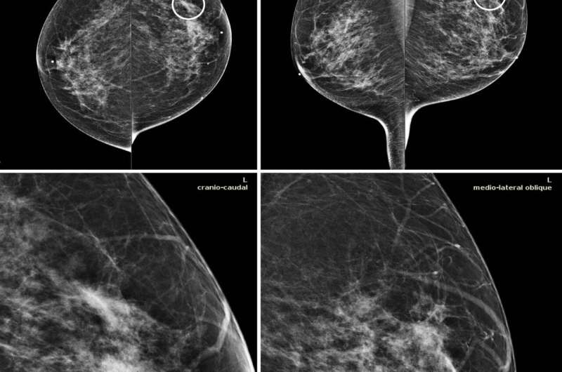 AI tool improves breast cancer detection on mammography