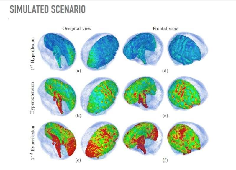 Alarming abusive head trauma revealed in computational simulation impact study