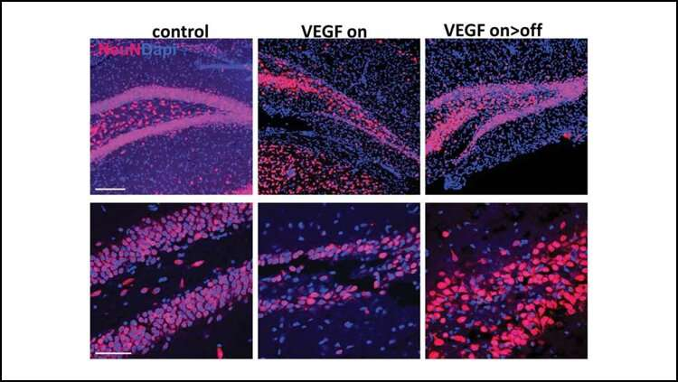 A new role for neurogenesis