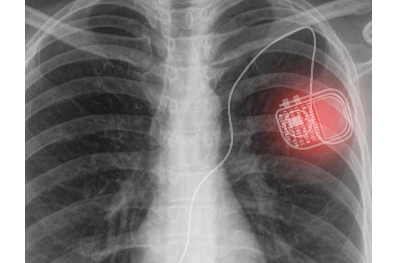 A novel active photonic wireless system to power medical implants