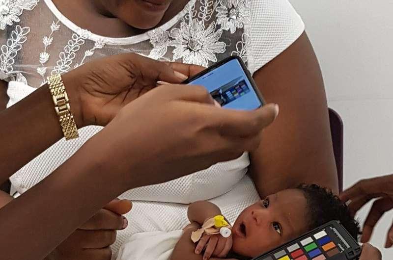 App detecting jaundice may prevent deaths in newborns