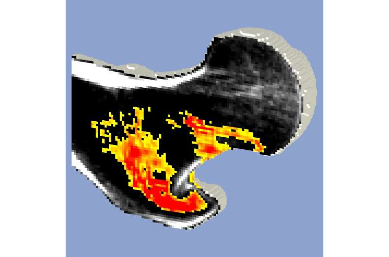 Are BMD and CT-FEA effective surrogate markers of femoral bone strength?