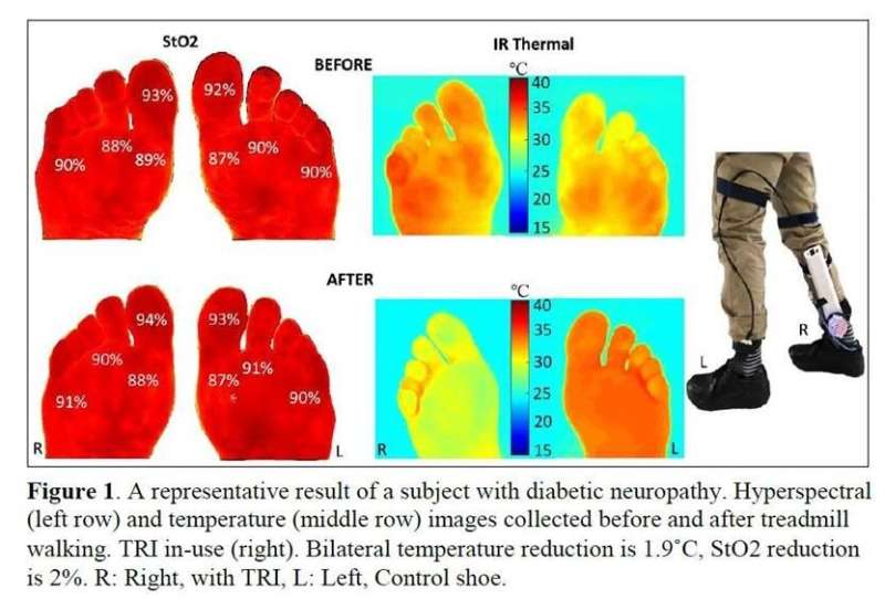 A sole mate to prevent diabetic foot ulcers
