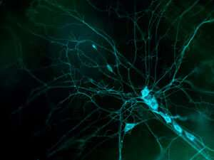 Atypical myosin plays a key role in neuron branching