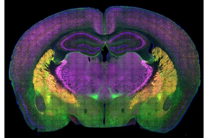 Autism researchers map brain circuitry of social preference