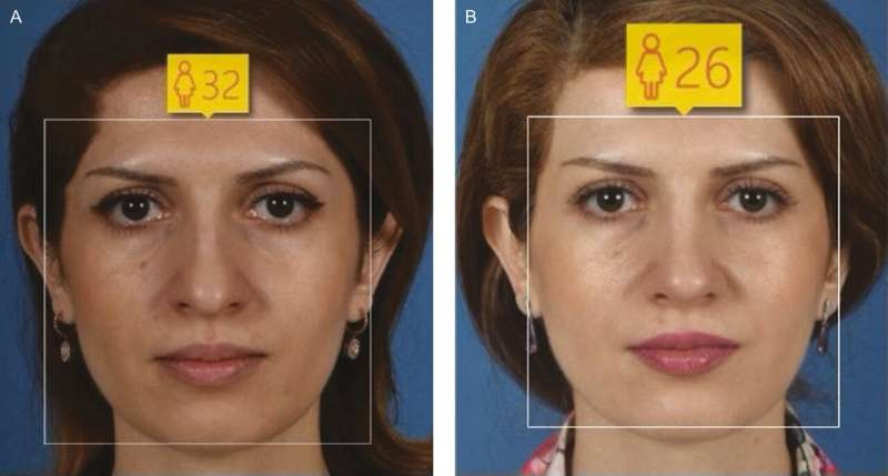 A way to look younger is right under your nose, UCLA-led study finds
