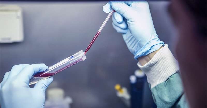 Blood test a potential new tool for controlling infections
