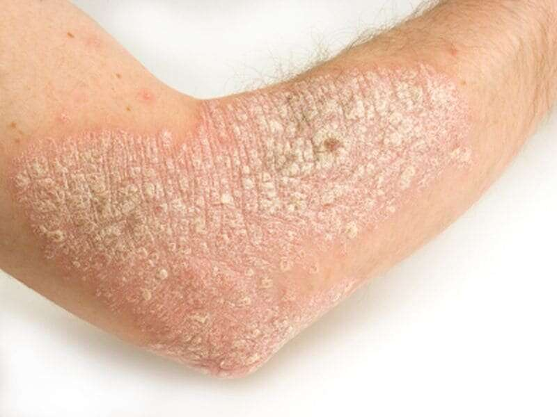 Body mass index lower in patients with familial psoriasis