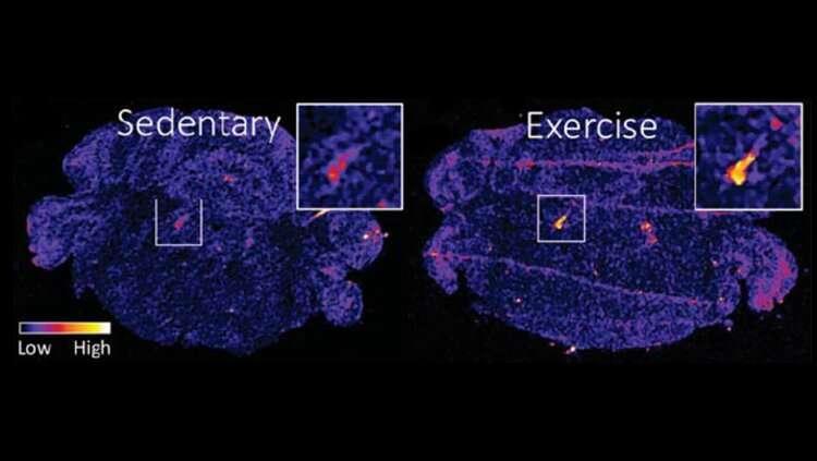 Brainstem protein mediates exercise-based stress relief