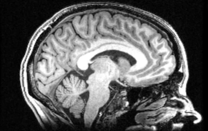 Brain structure may not influence personality after all