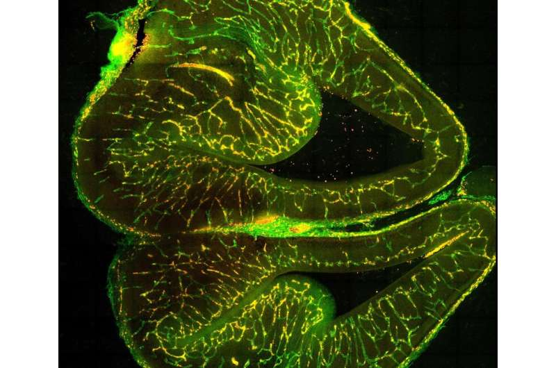 Brothers in arms: The brain and its blood vessels