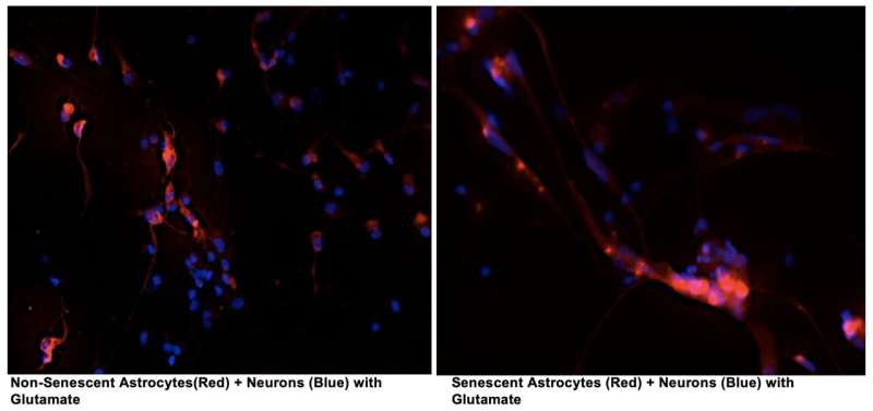 Buck researchers discover how cellular senescence leads to neurodegeneration