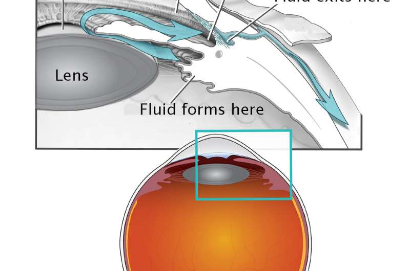 Cataract surgery in infancy increases glaucoma risk