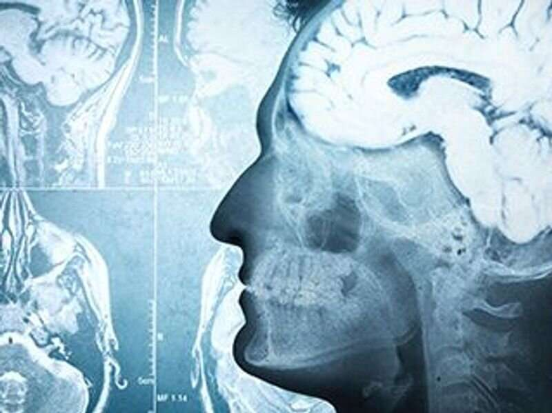 Childhood lead exposure tied to changes in adult brain structure
