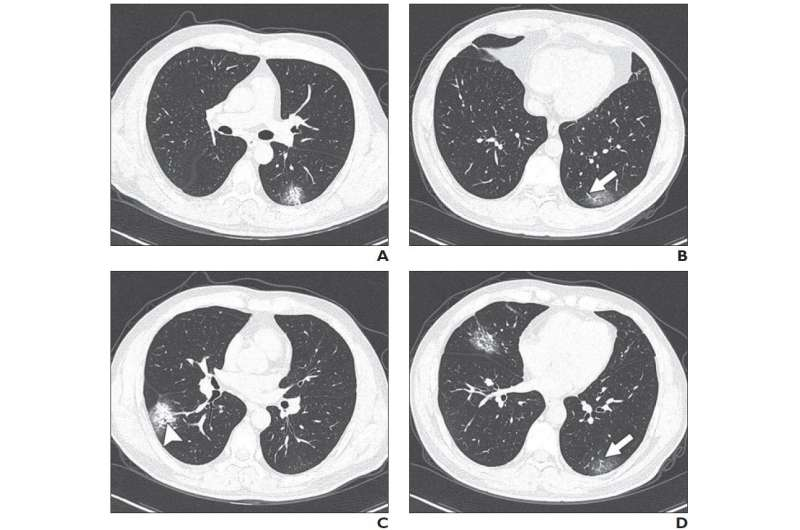 Chinese researchers detail chest CT findings in coronavirus disease (COVID-19) pneumonia