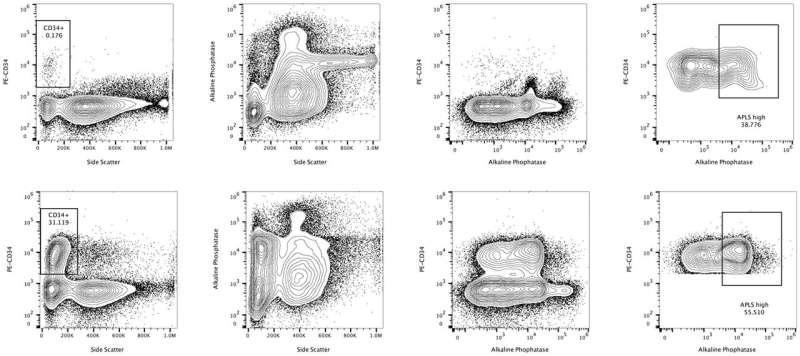 Closer to identifying leukemic stem cells