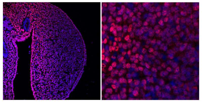CNIC researchers discover a system essential for limb formation during embryonic development