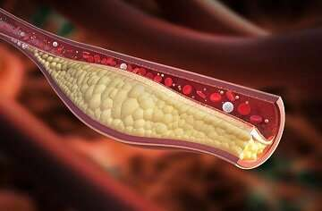 Combining mouse and human data uncovers new gene regulating cholesterol