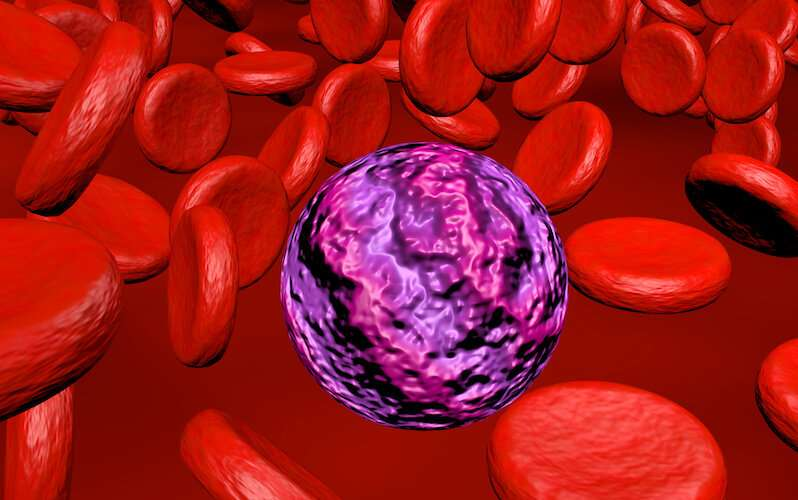 Could leukemia be stopped before it starts?
