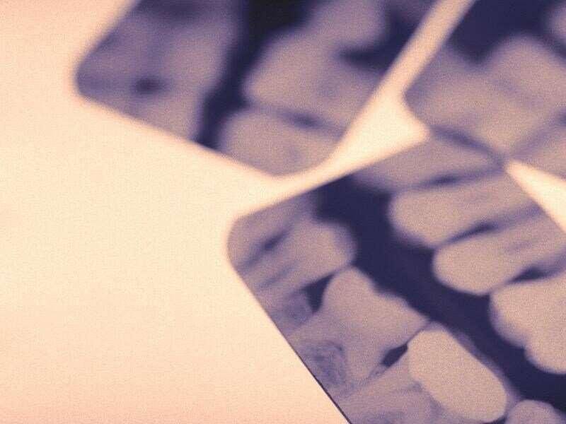 COVID bites: cracked teeth another coronavirus scourge