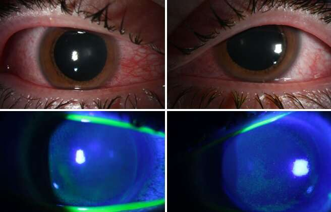 COVID's collateral damage: Germicidal lamps may damage corneas