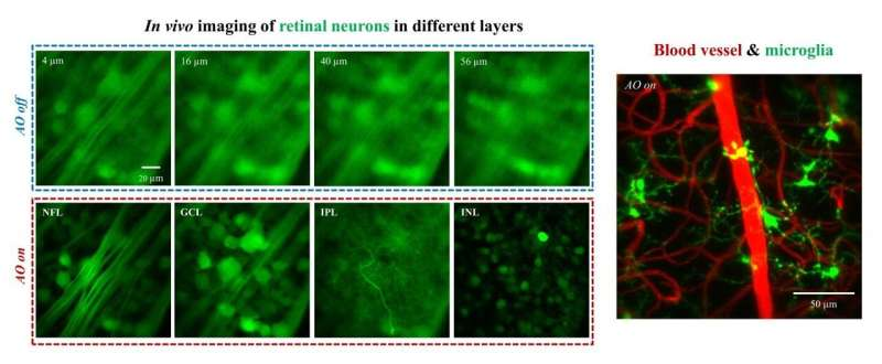 Cutting edge two-photon microscopy system breaks new grounds in retinal imaging