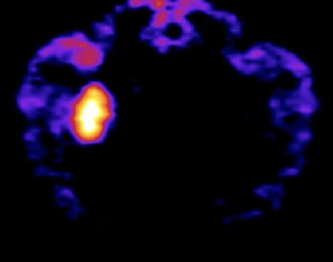 Deschloroclozapine: A selective chemogenetic actuator to rapidly control neuronal activity and behavior