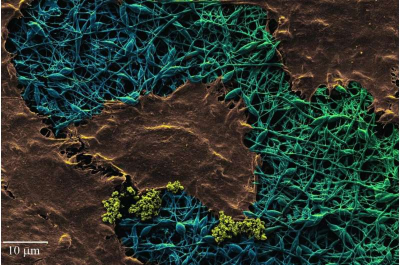 Diamond-studded silk wound dressing detects infection and improves healing