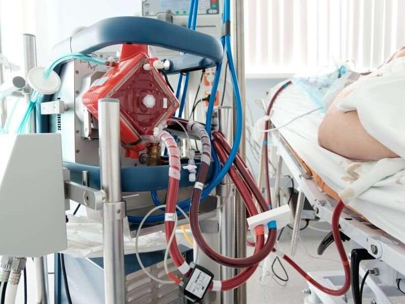 Early ECMO-facilitated resuscitation ups survival in OHCA