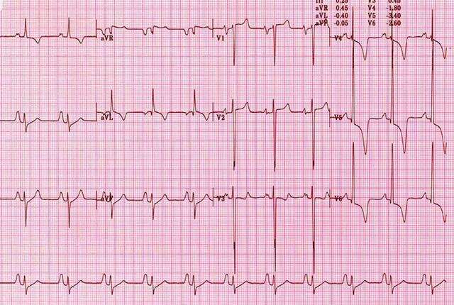 Electrocardiogram shows value in college athletes' screens