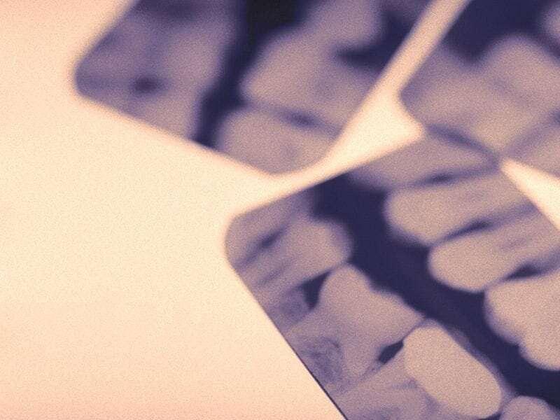 FDA: mercury risk means certain people should not get amalgam dental fillings