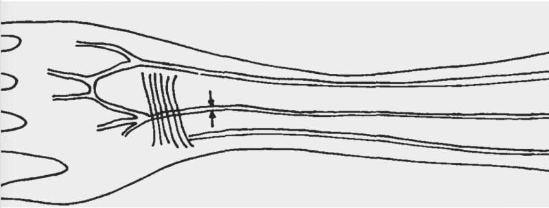 Forearm artery reveals humans evolving from changes in natural selection