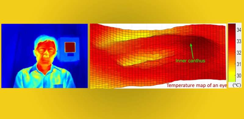 Full-face readings can optimize fever screening with infrared thermographs