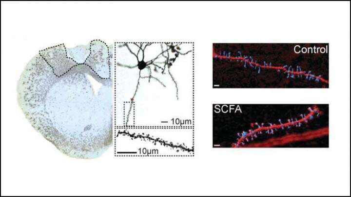 Harnessing the microbiome to improve stroke recovery