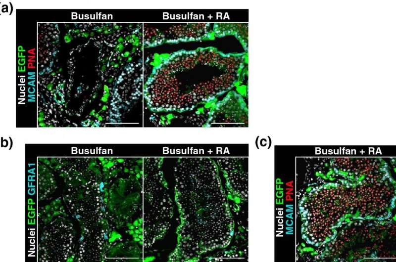 Healthy offspring from testicular tissue plantation in mice: Retinoic acid key