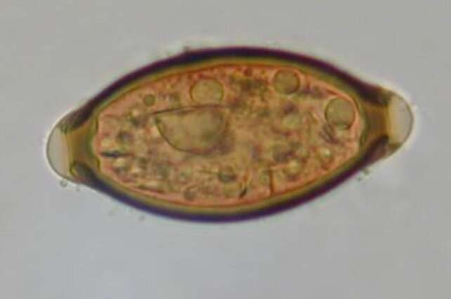 Helminth infections common in Medieval Europe, grave study finds