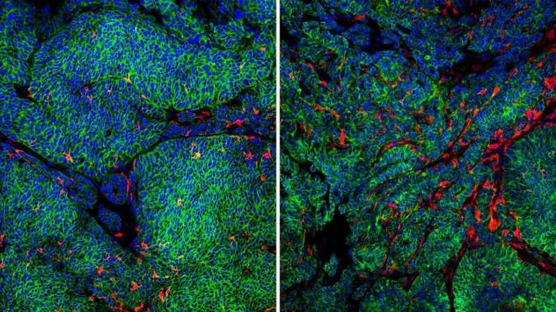 How breast cancer cells sneak past local immune defenses