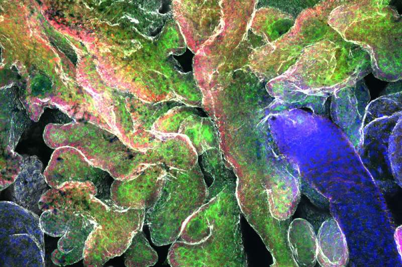 How mechanical forces nudge tumors toward malignancy